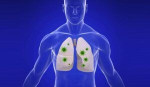 Allergies, rhume, grippe, asthme ou COVID-19?